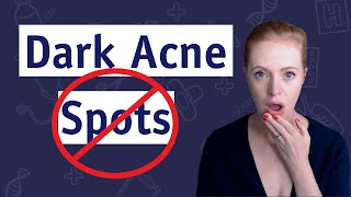 How To Get Rid Of Dark Spots Now 🚫