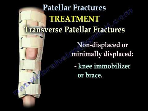 Tratament cu ultrasunete a genunchiului