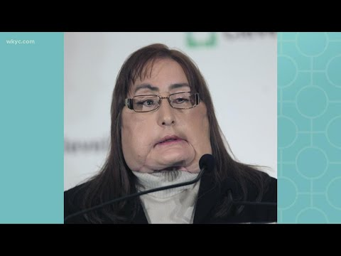 Connie Culp, first US face transplant recipient, dies at 57