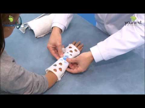 Las férulas en 3D permiten recuperarse de una fractura sin renunciar al  verano - Notas de prensa 71e720998a7f