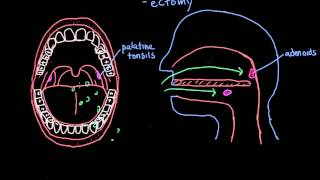 What is a Tonsillectomy?
