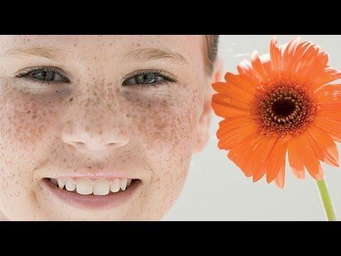 Никотиновая кислота против пигментных пятен на лице