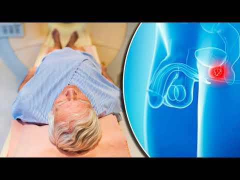 Prostate massage cost in Kharkov