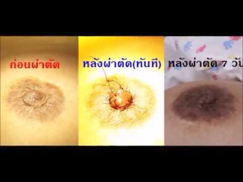 ภาพถ่ายการผ่าตัดเต้านม