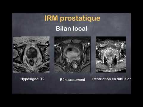 Prostate latine