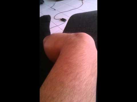 Leichte Schäden am Meniskus des Kniegelenks
