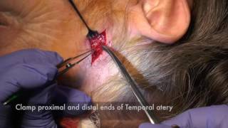 Temporal Artery Biopsy