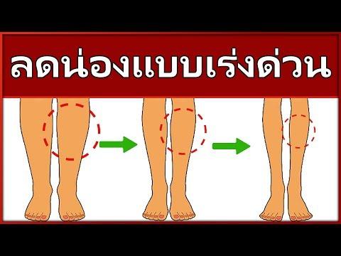 อาการของเส้นเลือดขอดที่ขา