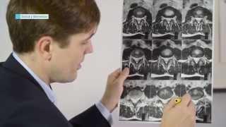 Dr. Casal: ciática-hernia discal.