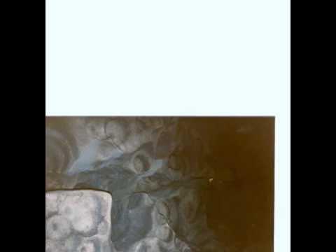 Pigmentazione di pelle principale di una fotografia