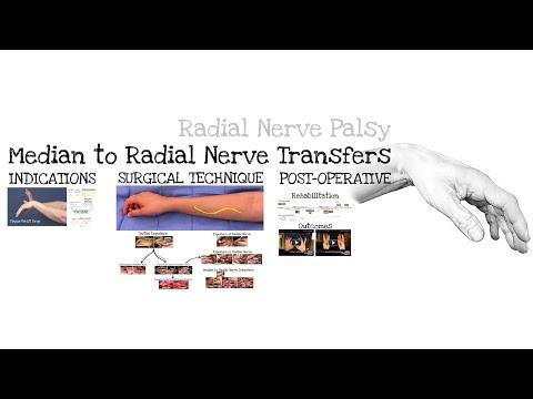 Przeniesienie (transfer) nerwu pośrodkowego do nerwu promieniowego