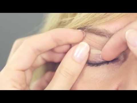 Die Kreise unter den Augen, die Operation zu entfernen