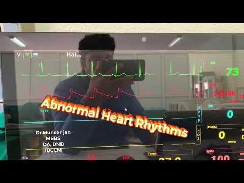 Umjetnost život hipertenzija