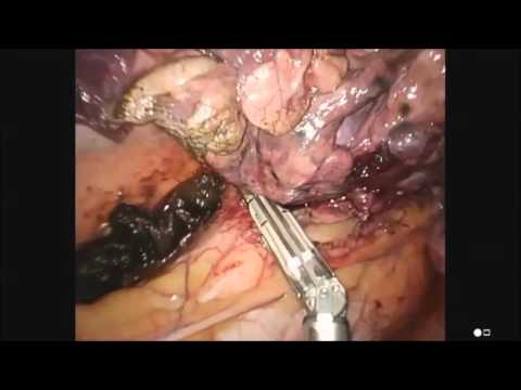 Micropneumonectomy