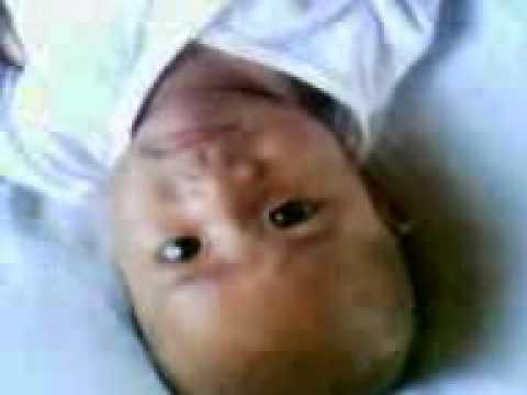 Ko bang ilagay ang braces manipis