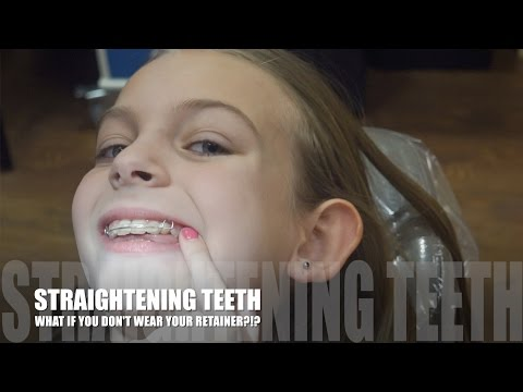 STRAIGHTENING TEETH!!! WHAT IF YOU DON'T WEAR YOUR RETAINER?!?