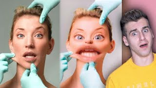 Girl Gets Surgery To Look Like Snapchat Filter!