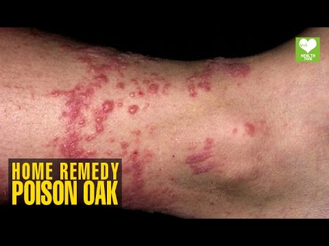 Video Home Remedies To Get Rid Of Poison Oak | Health Tips | Educational Video
