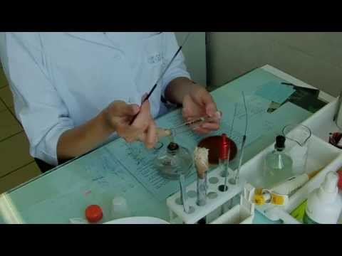 Как определить что у человека паразиты