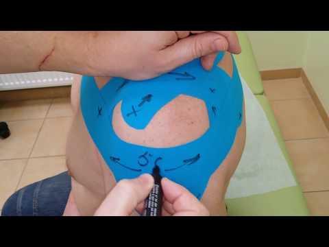 Кинезиотейпирование плечевого сустава. Как тейпировать Боль в плече. Инструкция наложения тейпа.
