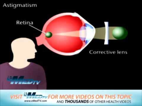 Suplimente alimentare în oftalmologie