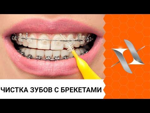 Полный алгоритм чистки зубов с брекетами: 6 шагов.