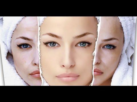 Снять аллергический отек глаз