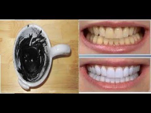 Clareador Dental 100 Carvao Ativado Escova Especial R 36 00 Em