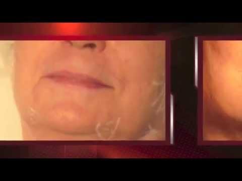 Le masque pour lallergique sur la personne