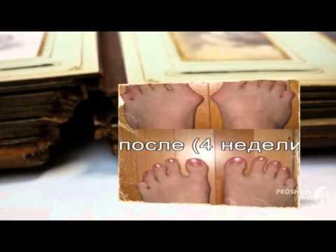 Средство от шишек на пальцах ног