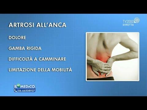 Trattamento sanatorio delle articolazioni di artrite. artrosi