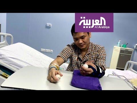 العرب اليوم - شاهد: نجاح أول عملية جراحية لزرع كف من متبرع حي