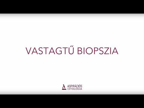 Szemölcs vírus citopátiás változásai