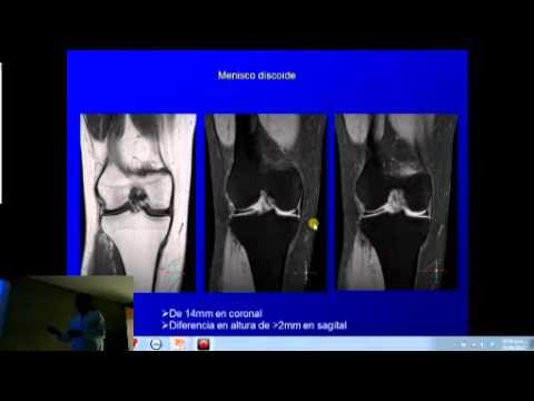 Artrosis de la rodilla y el tratamiento de alimentos