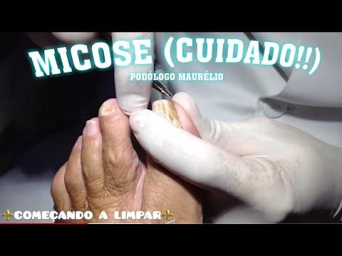 Tratamento de um fungo de unhas e pé de iodo de pernas