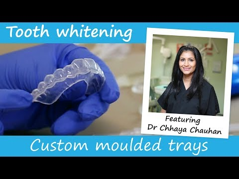 Dentist made teeth whitening trays explained