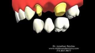 how is a dental bridge made?