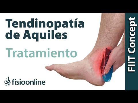 Meniskopatiya la rodilla de la CIE-10
