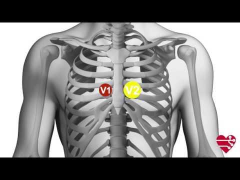 Ipertensione arteriosa Noshpa