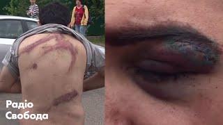 «Люди від болю ходили під себе» – очевидці про побиття в білоруських СІЗО