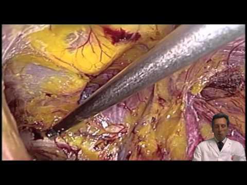 Laparoscopic Trans-Abdominal Pre-Peritoneal Inguinal Hernia Repair (TAPP)