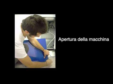 Scoliosis lombare di 1 grado a bambini