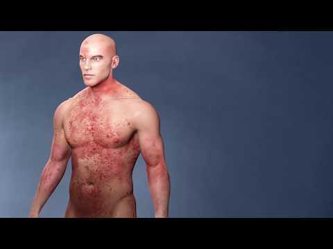 Eczema allergico a causa di nervi