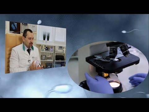 Уровень простат специфического антигена при раке простаты