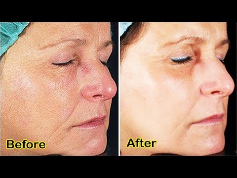Skin Tighening Best Remedy That Actually Works