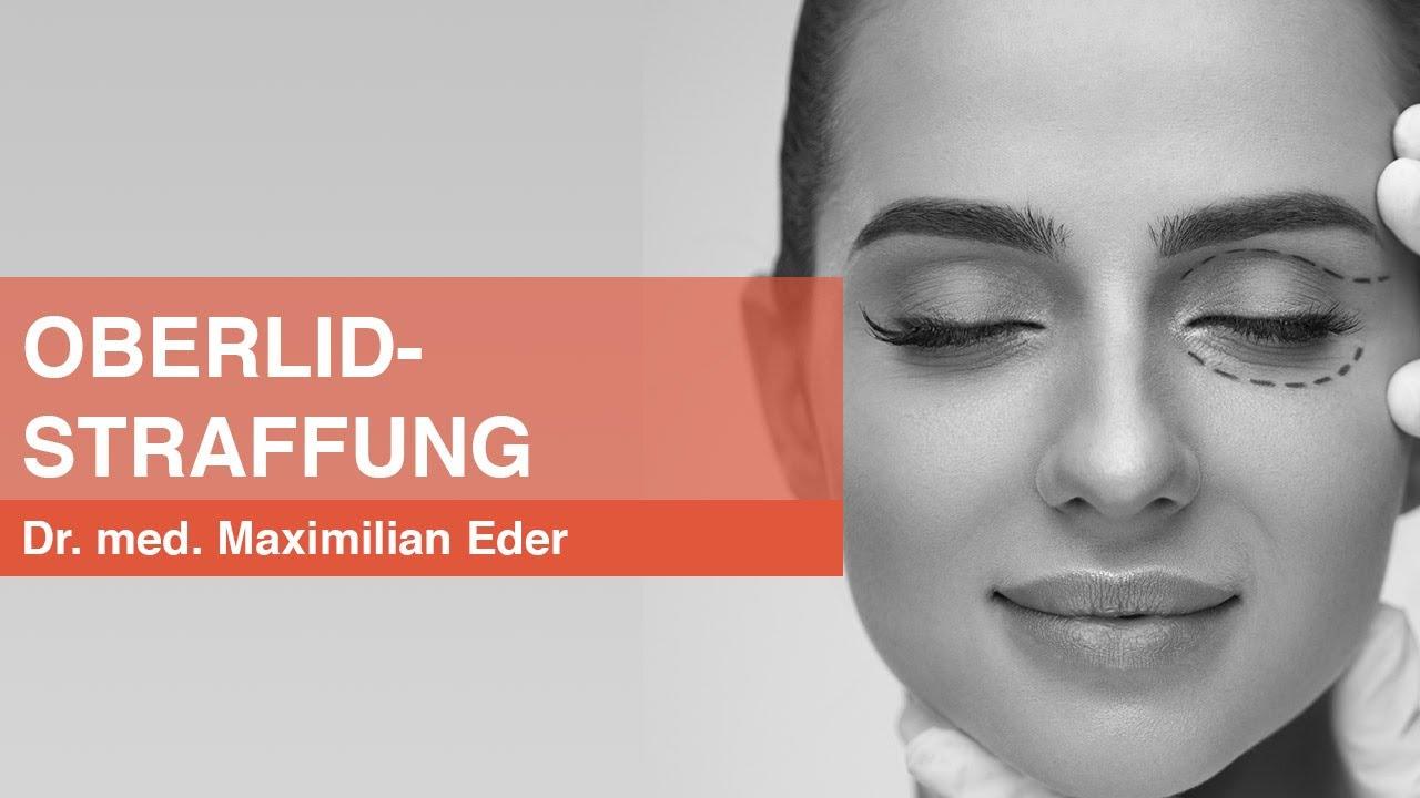 Oberlidstraffung München - Dr. Maximilian Eder