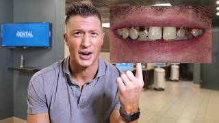 Dentist says DO NOT CROWN YOUR TEETH! - Proves it with a Clinical example!