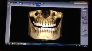 Кт в стоматологии , лучший вариант диагностики в стоматологии ,   ,rt dentistry