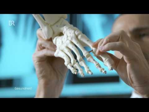Tut den Nagel auf dem Bein, wie weh zu behandeln