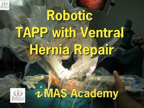 Robotic TAPP with Ventral Hernia Repair